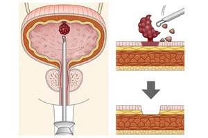 Рак мочевого пузыря и доброкачественные опухоли – виды опухолей мочевого пузыря