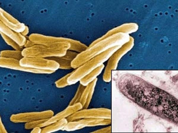 Все причины и факторы риска плеврита – виды плевритов и их симптомы