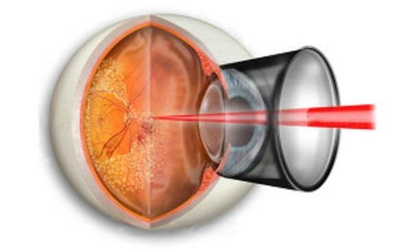 Ограничения после лазерной коагуляции сетчатки глаза, осложнения