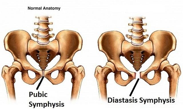 Лечение симфизита при беременности - диагностика, тактика родов, профилактика