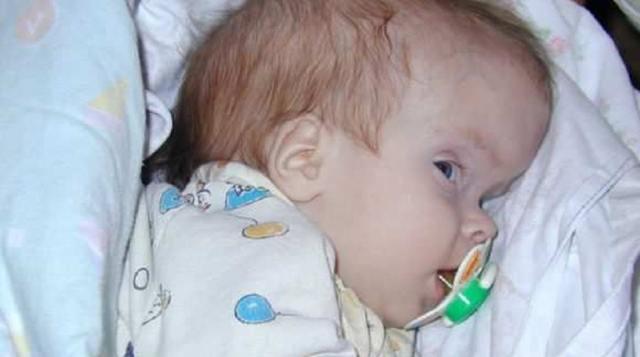 Краниосиностоз у детей – причины развития и чем опасна патология