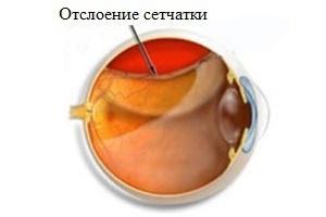 Причины и симптомы отслоения сетчатки – классификация отслойки сетчатки