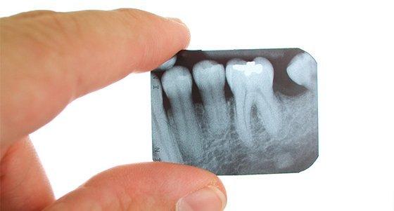 Современные стоматологические визиографы – лучшие модели радиовизиографов для кабинета стоматолога
