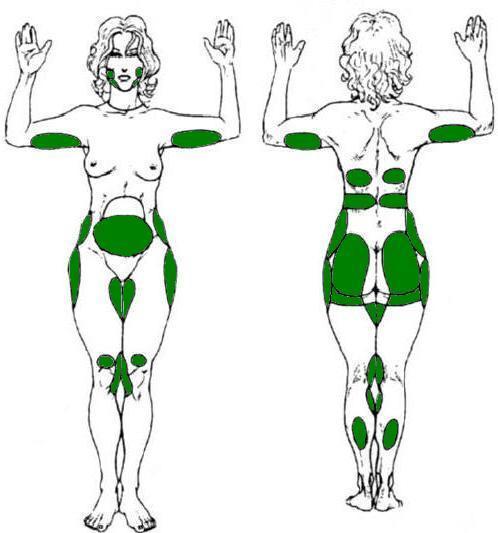 Липофилинг лица и тела – все плюсы операции липопластики, техника выполнения, рекомендации
