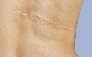 Что делать, если болит шрам или рубец после операции – патологические рубцы и их лечение