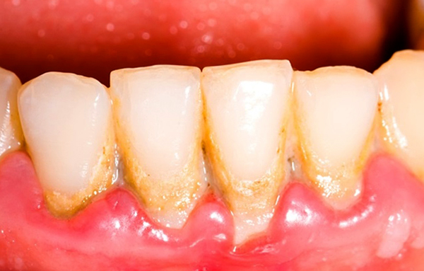 Плюсы и минусы лазерной чистки зубов – суть процедуры удаления зубного камня лазером