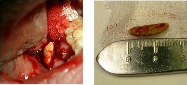 Камни слюнных желез – диагностика и лечение слюнного камня