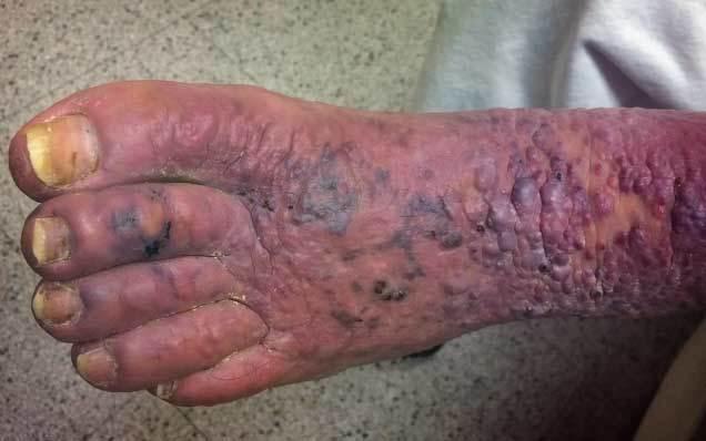 Саркома Капоши – симптомы и методы лечения злокачественного заболевания кожи