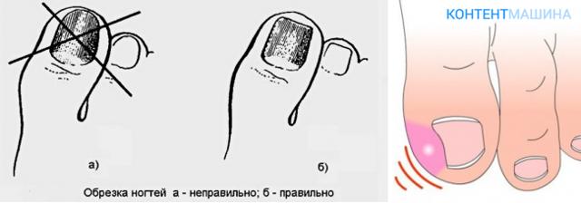Коррекция вросшего ногтя лазером – этапы операции, сравнение цен на удаление вросших ногтей