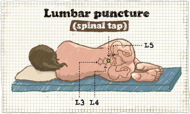 Что такое люмбальная пункция и когда необходимо ее проведение