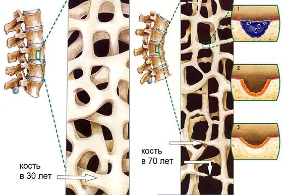 Виды и степени остеопороза по медицинской классификации, причины остеопороза