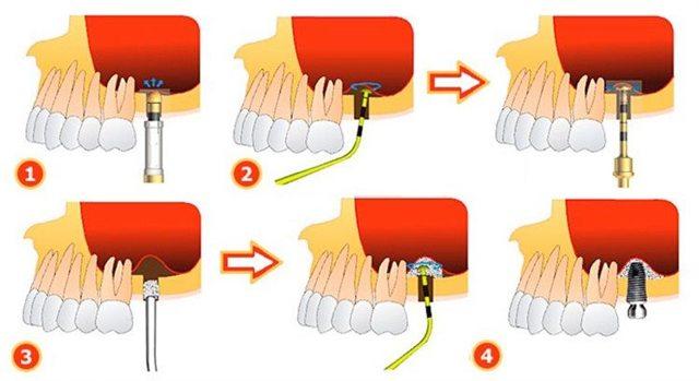 Синус-лифтинг – особенности открытого и закрытого синус-лифтинга