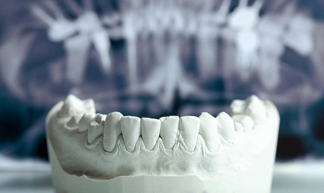 Новые имплантаты из шелка помогут восстановить сломанные кости