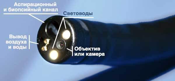 Эндоскоп медицинский – виды, производители и цены на эндоскопы