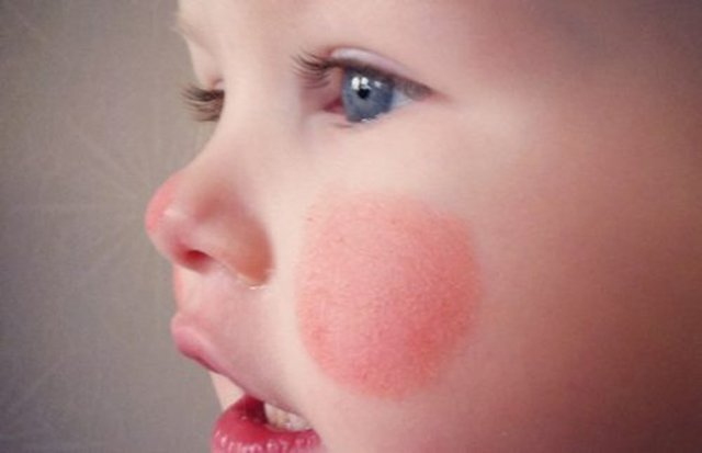 Первая помощь при обморожении ребенка - лечение обморожений у детей