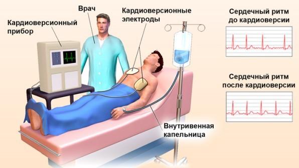 Лечение мерцательной аритмии оперативным путем – показания к операции и прогноз