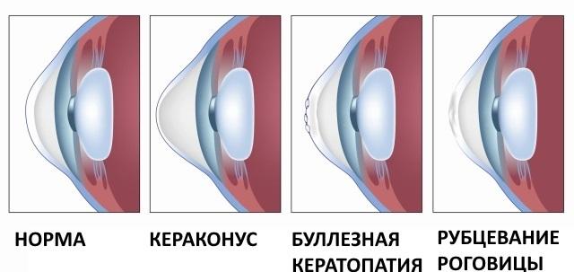 Комплексное лечение кератоконуса – виды операций при кератоконусе, их плюсы и минусы