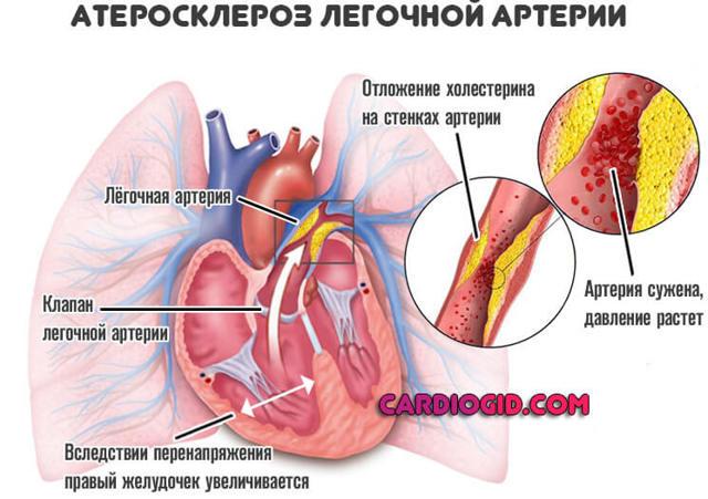 Как поддержать сердце и сосуды?