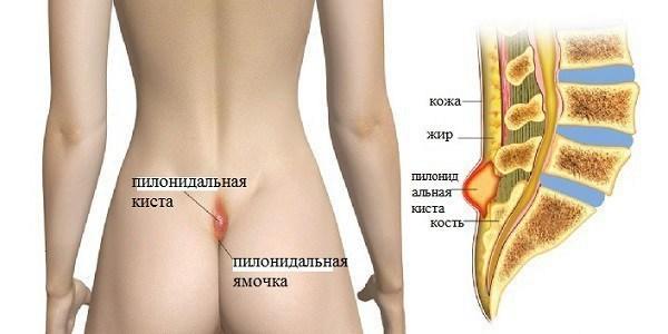 Боль в копчике - все причины и симптомы кокцигодинии у мужчин, женщин, детей