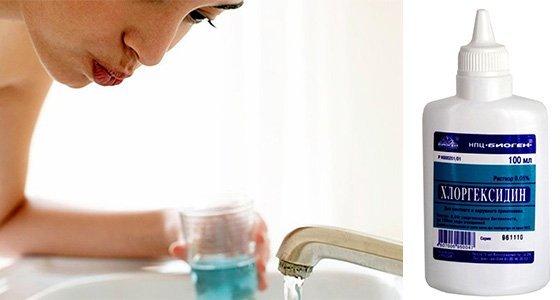 Методы лечения гингивита в домашних условиях и стоматологической клинике