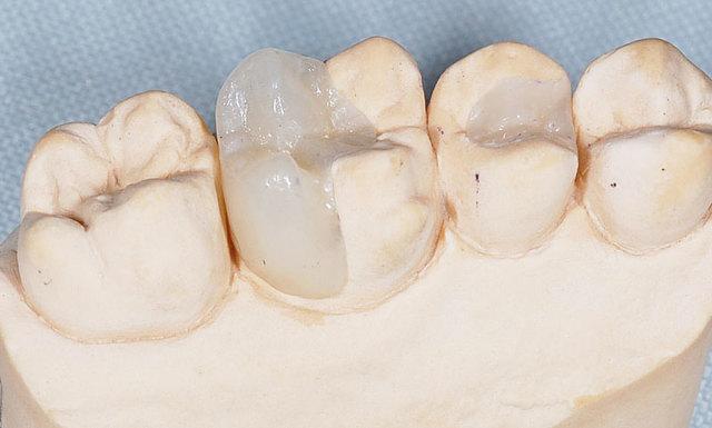 Зубные пломбы в стоматологии - плюсы и минусы, какую пломбу выбрать?