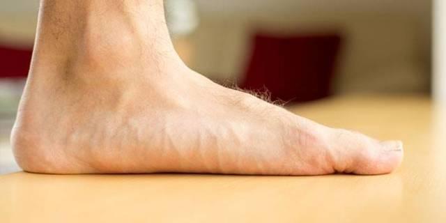 Плоскостопие – виды и степени, признаки и симптомы плоскостопия