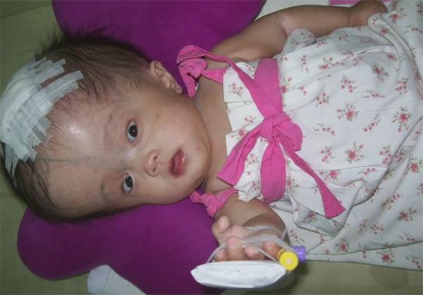 Лечение гидроцефалии у детей - операция, результат и прогноз