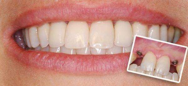 Техника бескровной имплантации зубов – показания, преимущества и этапы имплантации зубов без разрезов