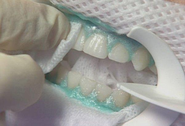 Показания к применению десневых повязок – как выполняют зубные повязки?