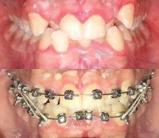 Прикусывание щеки, как симптом стоматологических проблем – причины прикусывания щеки и лечение