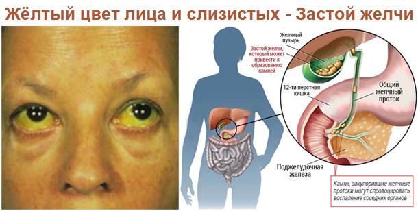 Причины появления привкуса горечи или желчи во рту – при каких заболеваниях возникает, и что делать?