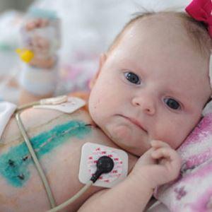 Причины ВПС у детей и взрослых, классификация врожденных пороков сердца