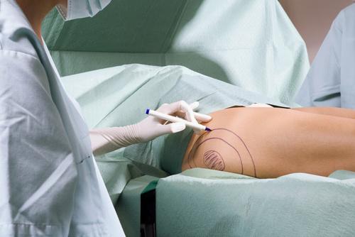Операция по подтяжке бедер - показания и противопоказания к феморопластике