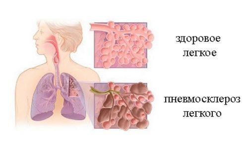 Симптомы шейного остеохондроза 1, 2, 3 степени и их проявление в зависимости от степени