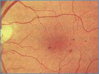 Диагностика и лечение диабетической ретинопатии – рекомендации пациентам по профилактике осложнений