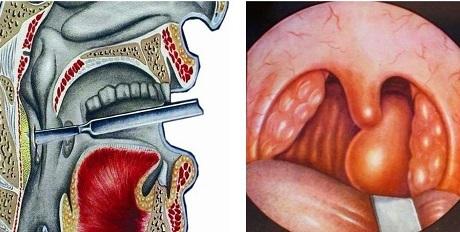 Заглоточный, или паратонзиллярный абсцесс – причины и симптомы абсцесса