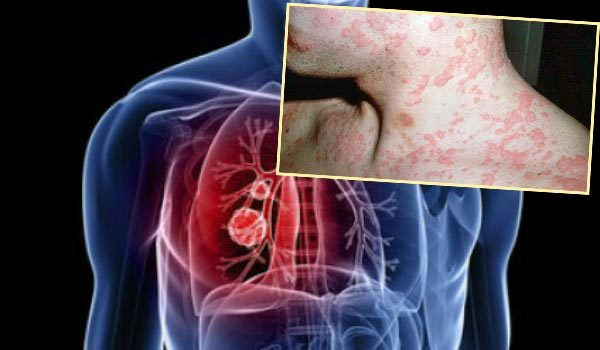 Ринопластика сегодня - виды, показания, этапы пластики носа и последствия