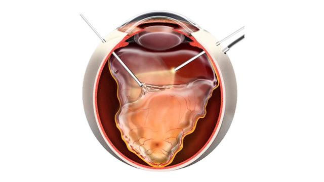 Виды операций при отслоении сетчатки – восстановление зрения, прогноз