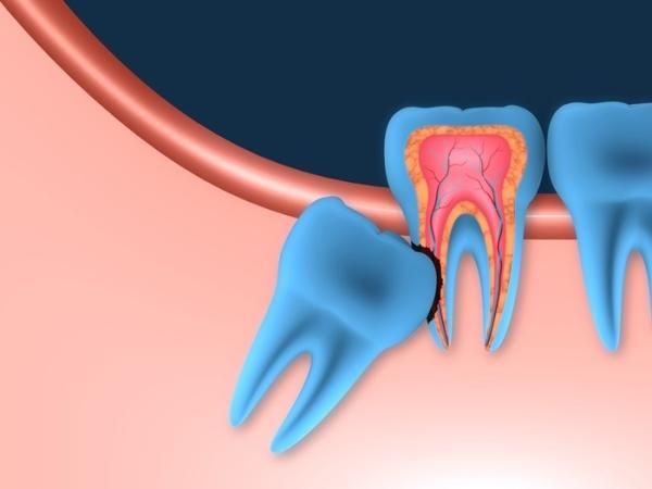 Всегда ли показано удаление зубов мудрости при болях – что делать, если болят зубы мудрости