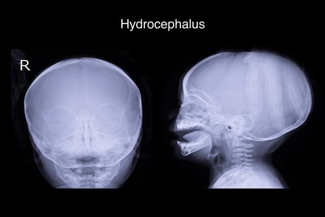 Гидроцефалия у детей: причины, симптомы, диагностика, последствия