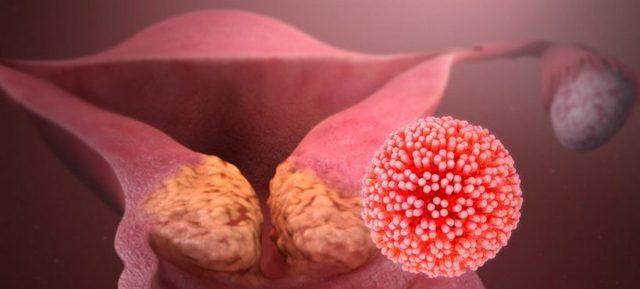 Рак шейки матки – основные причины, симптомы, современная диагностика