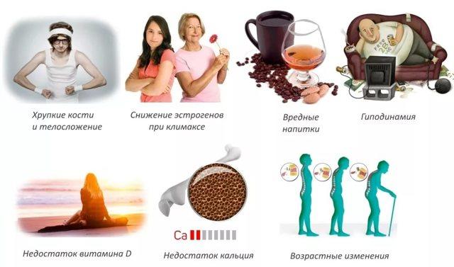 Остеопороз – лечение и профилактика остеопороза сегодня