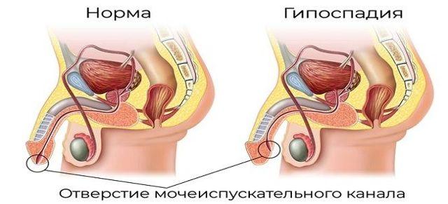 Операции при гипоспадии у детей, формы детской гипоспадии и диагностика