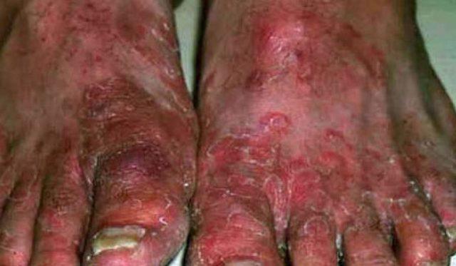 Сепсис – что провоцирует опасное заболевание крови и эффективные методы лечения