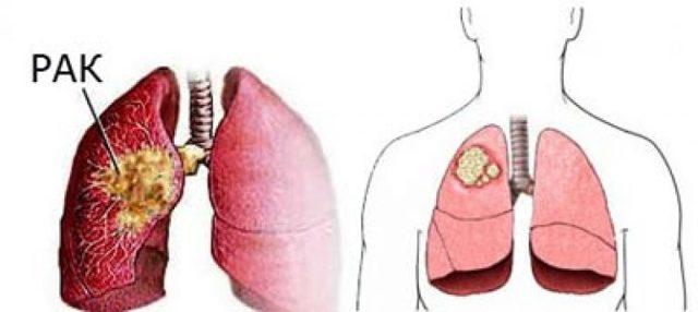 Рак легких – причины возникновения, симптомы, виды и стадии рака легких