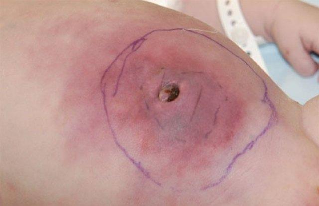 Омфалит – причины развития инфекции и способы лечения заболевания