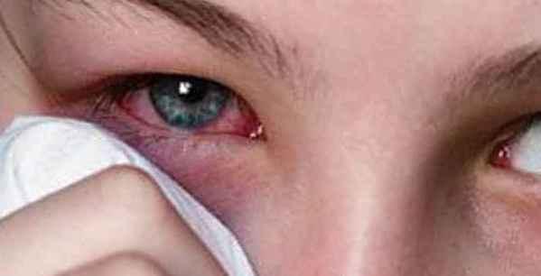 Степени ожога глаз сваркой – симптомы, лечение электрофотоофтальмии