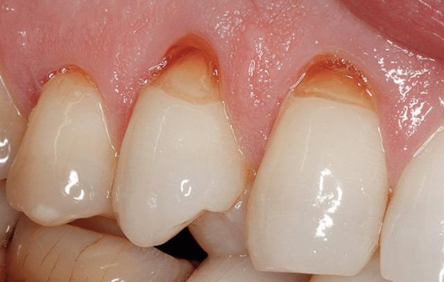 Дентин – виды, строение и состав дентина зуба