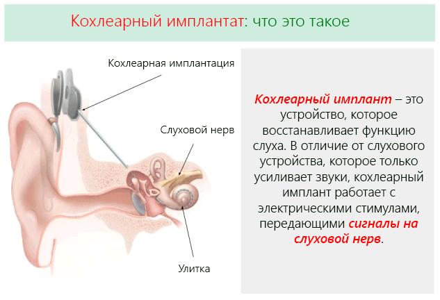 Принцип действия кохлеарного имплантата и методика его установки