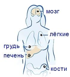 Симптомы и современные методы лечения рака щитовидной железы